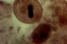 Balantidium coli (vakovka střevní) u psa